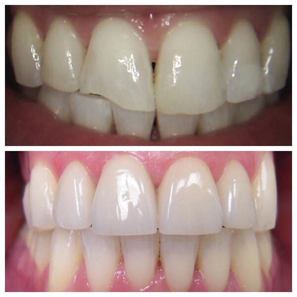 1-Four-crowns-restore-chipped-teeth-1