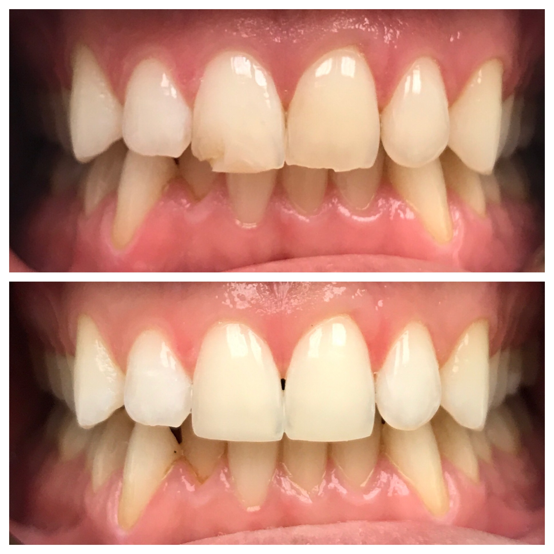 10-Two-bondings-to-restore-chipped-teeth-1