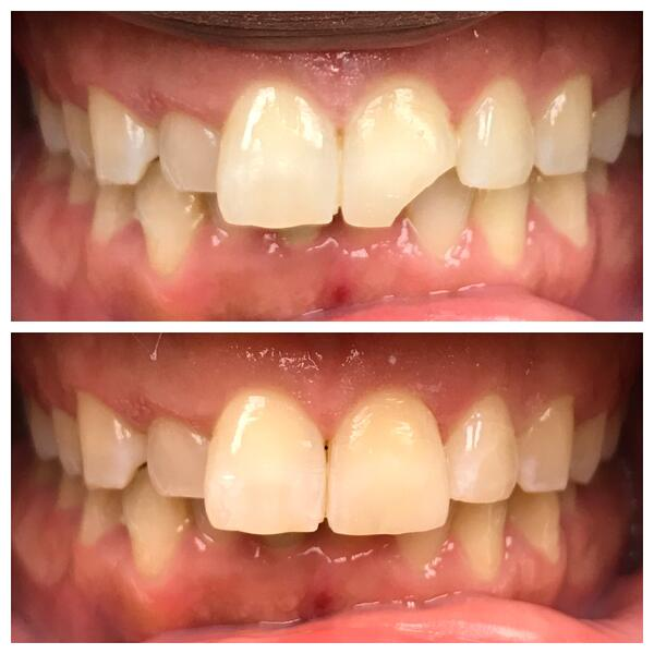 12-Bonding-to-restore-chipped-tooth