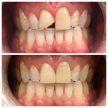 18-Bonding-to-replace-chipped-tooth