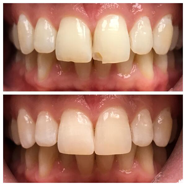 4-Bonding-to-restore-chipped-tooth-1