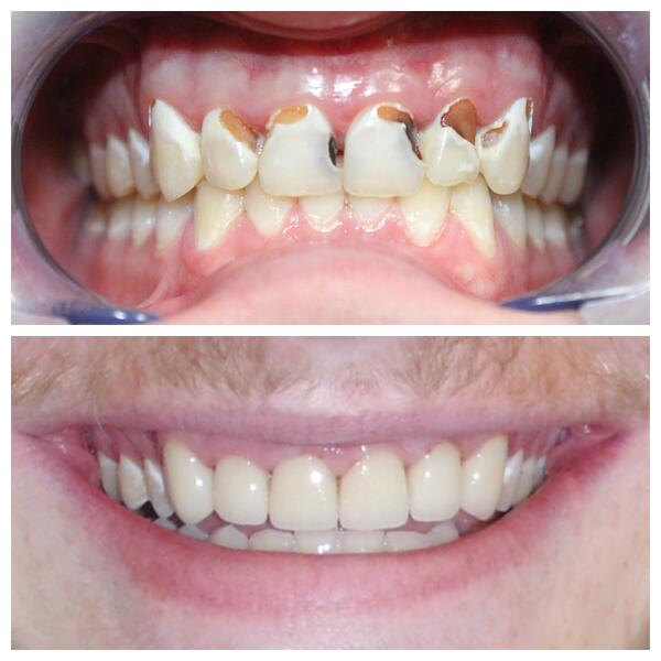 9-Crowns-to-restore-severe-cavities