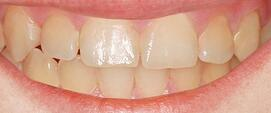 Courtesy of Icon - Needle free an drill free cavity treatment AFTER