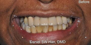 complex-dental-cases-before-nyc-e1517181498733-580x289