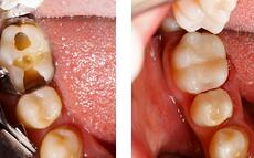 general-restorative-dentistry-nyc-580x360