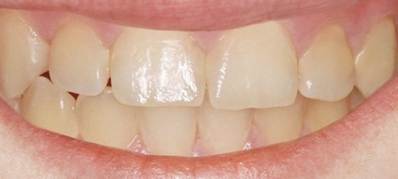 needle-free-cavity-filling-after-nyc-580x261