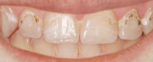 needle-free-cavity-filling-before-nyc-580x235-1
