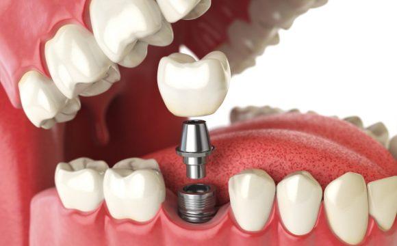 dental-surgery-implants-nyc-580x360