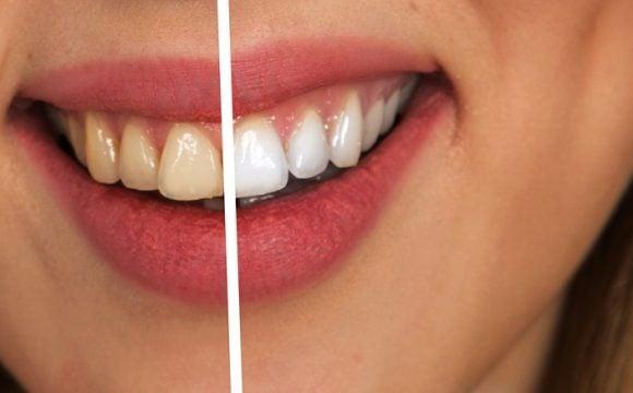 teeth-whitening-580x360